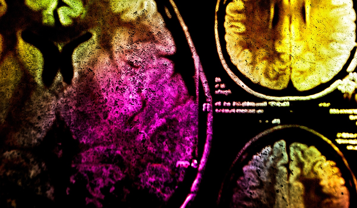 medical-biotech-brain